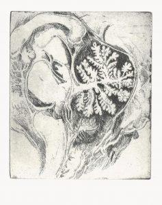 Hübsches Hirn, 2005, Strichätzung, 11 x 9 cm